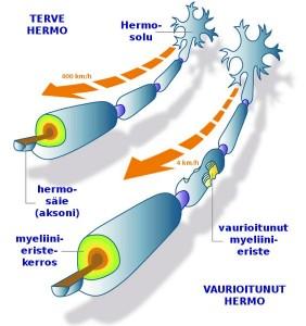 Myeliinin vaurioituminen MS-taudissa